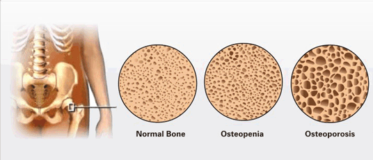 bone-health-osteoporosis